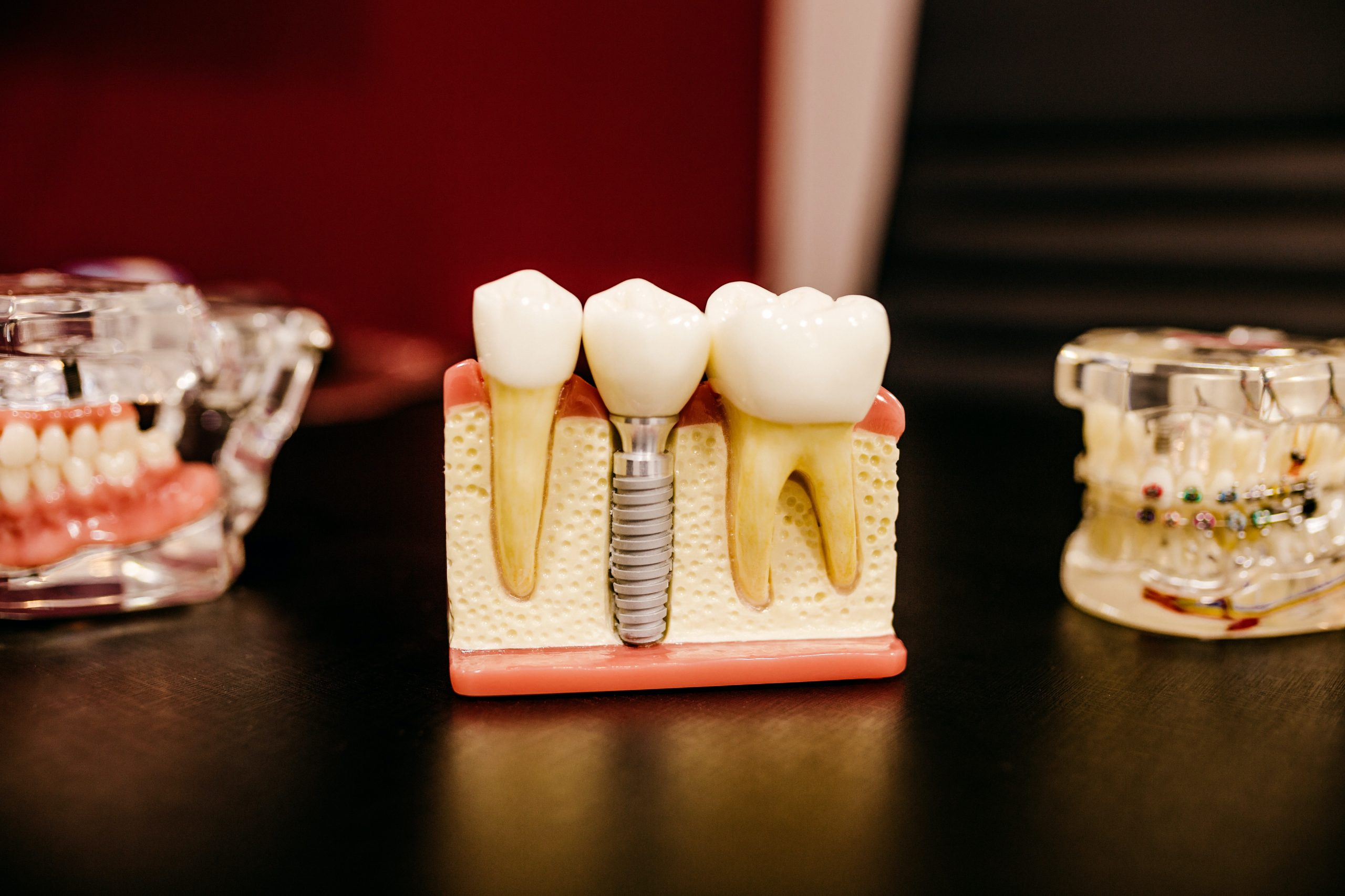 a dental model of teeth